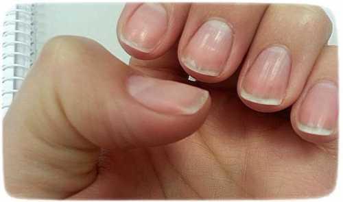 что делать, если слоятся ногти